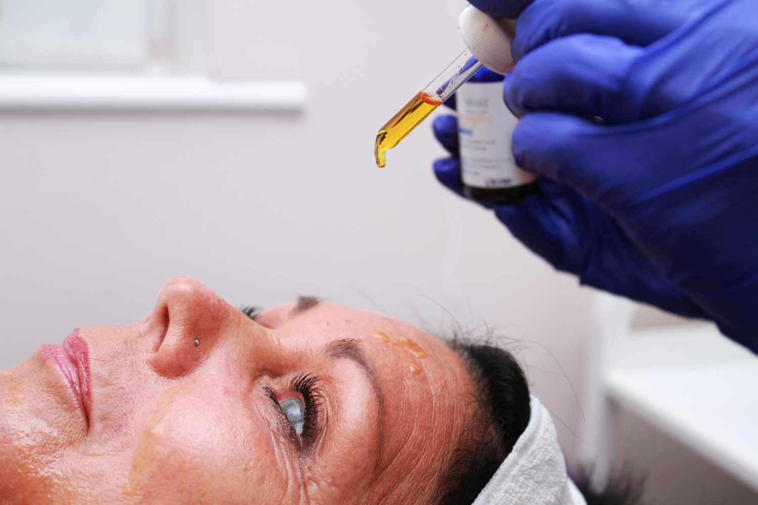 Chemical Peel Application