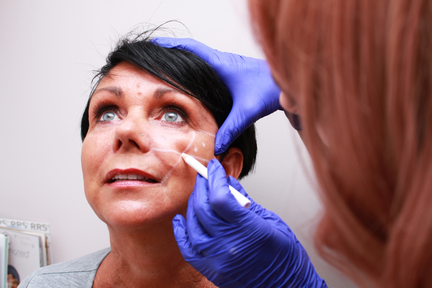 Dermal Fillers Preperation
